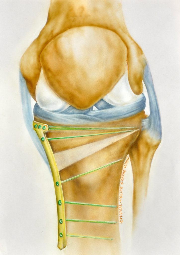 Ortho -Clinic : opdracht